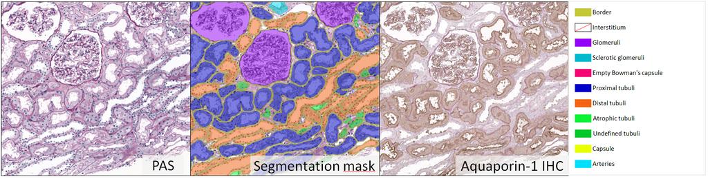 Kidney segmentation
