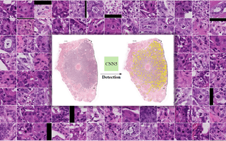 Automatic mitosis detection in breast cancer tissue sections