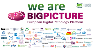 New European consortium BIGPICTURE, coordinated by CPG, will build the world's largest AI-enabled digital pathology database