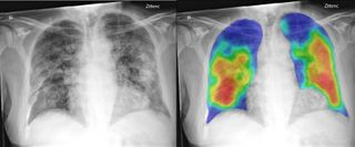 CAD4COVID-XRay in the news