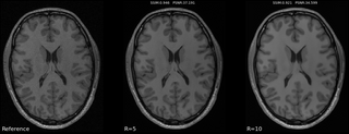 MIDL 2020 MRI Reconstruction Challenge