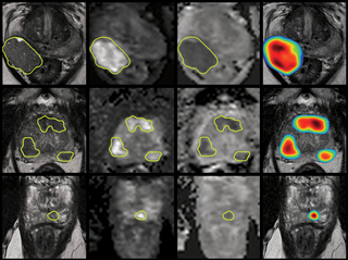 Study on End-to-end Automated 3D Prostate Cancer Detection in MRI published in Medical Image Analysis