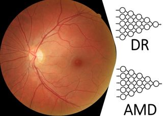 Accepted publication in Acta Ophthalmologica