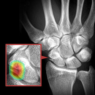 AI tool to detect scaphoid fractures on wrist x-rays