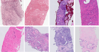 Impact of Scanners and Staining of WSIs on CNNs