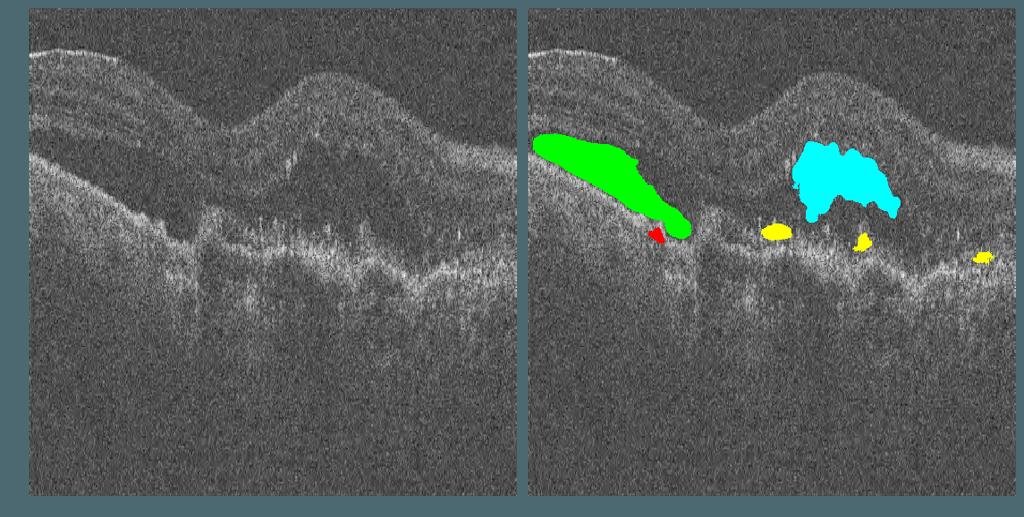 Lesions segmentation in OCT