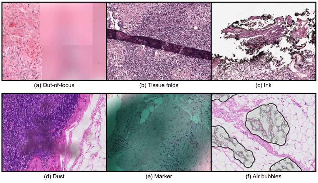 pathology-artifact-detection