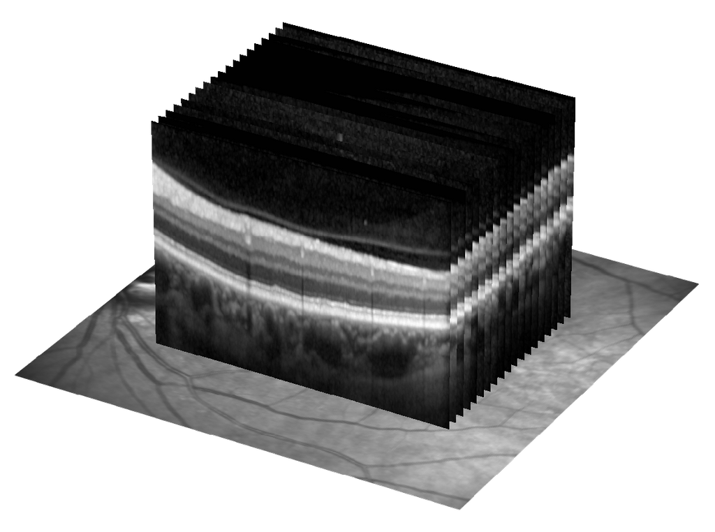 Multimodal (OCT and CF) image analysis