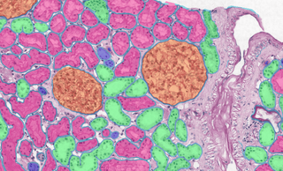 Review on Computational Pathology published in Nature Medicine