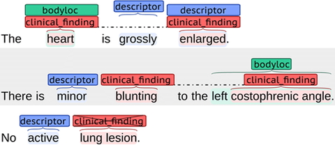 Natural language processing of radiology reports for lesion detection