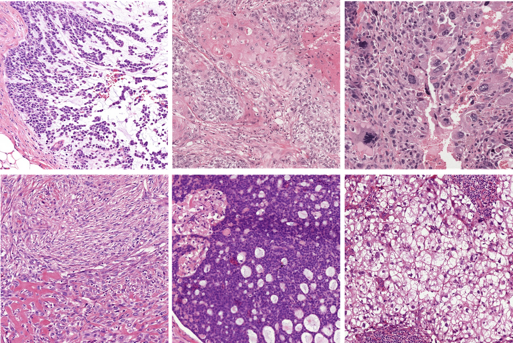 Deep Learning to predict recurrence in triple negative breast cancer (TNBC)