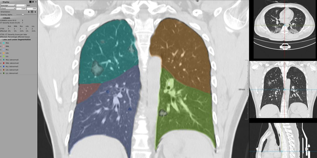 Improving detection of COVID-19 classification with CT scans