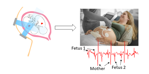 Fetal heart rate detection in twin pregnancies