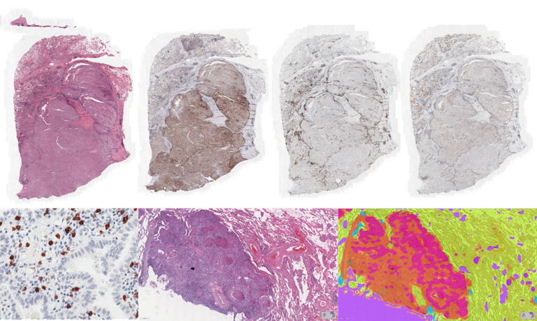 AI to analyze lung cancer histology images