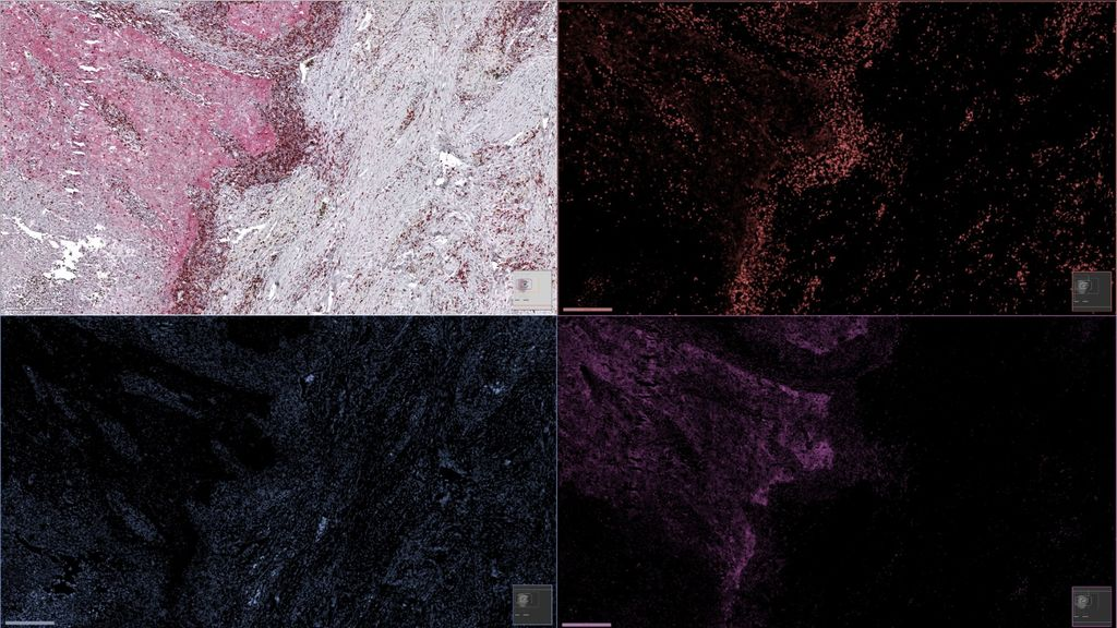 Unmix multiplex immunohistochemistry with deep learning