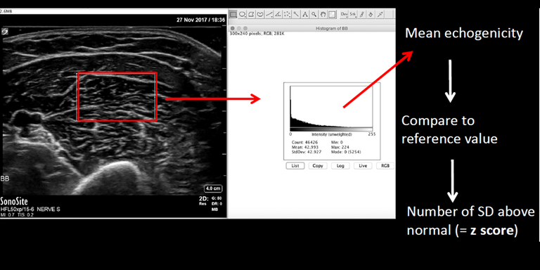 Screening for neuromuscular disorders using automatic classification of muscle ultrasound images