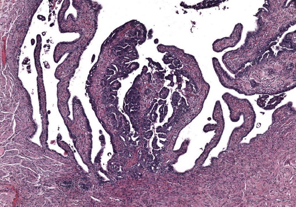 Postdoc 'Deep learning to improve pathology diagnostics'